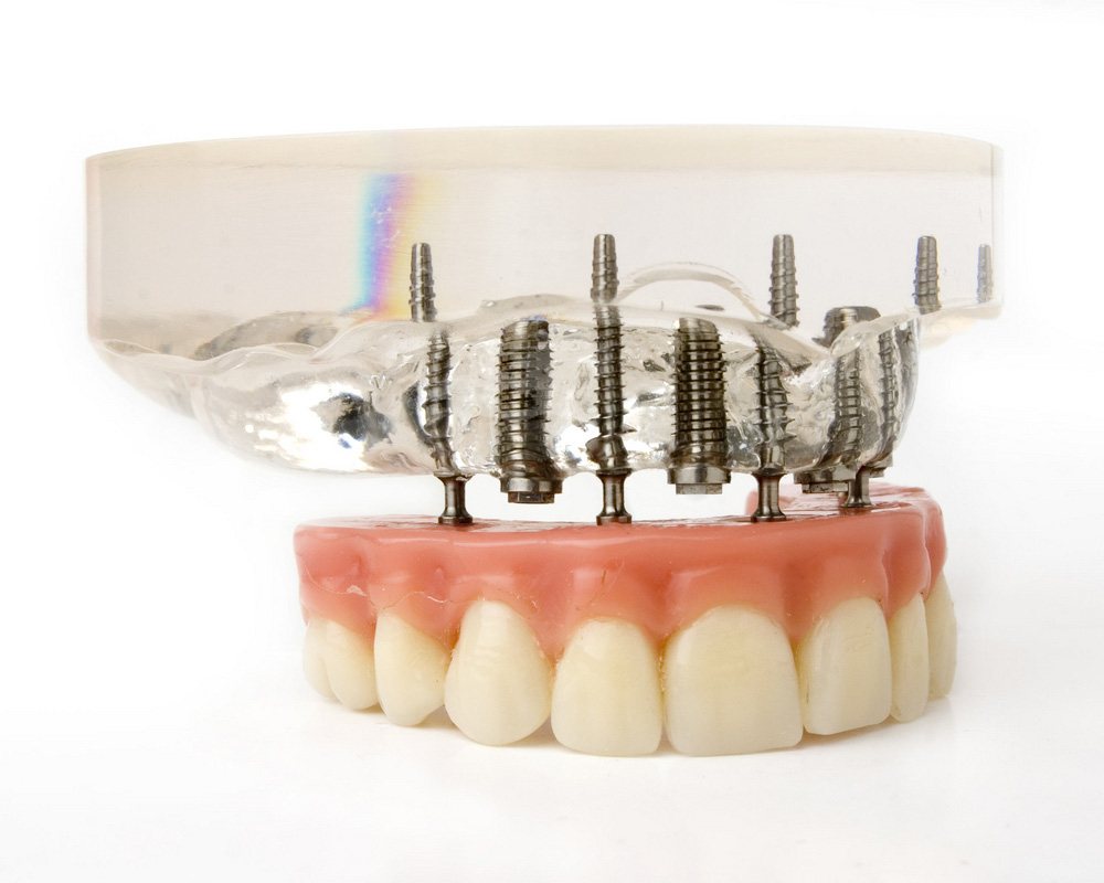 <p>Dental Implants and Prosthetics Market</p>