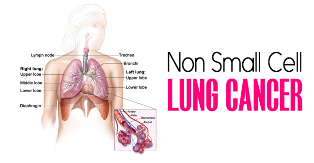 <p>Non-Small Cell Lung Cancer</p>